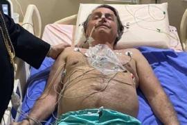 Presidente Jair Bolsonaro é internado com crise de soluço e dores abdominais